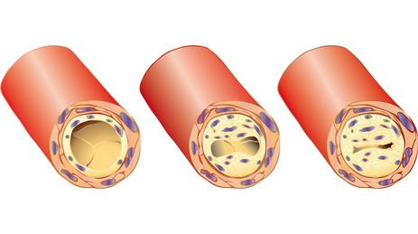 Cholesterinspiegel, Arteriosklerose und Aminosäuren